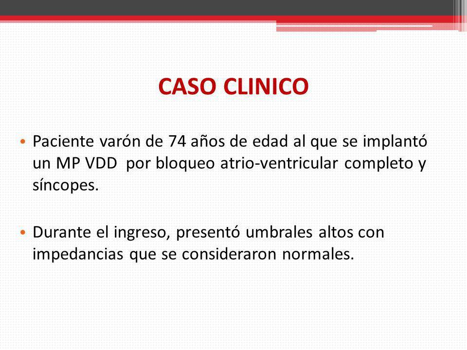 CASO CLINICO Paciente varón de 74 años de edad al que se implantó un MP VDD por bloqueo atrio-ventricular completo y síncopes.