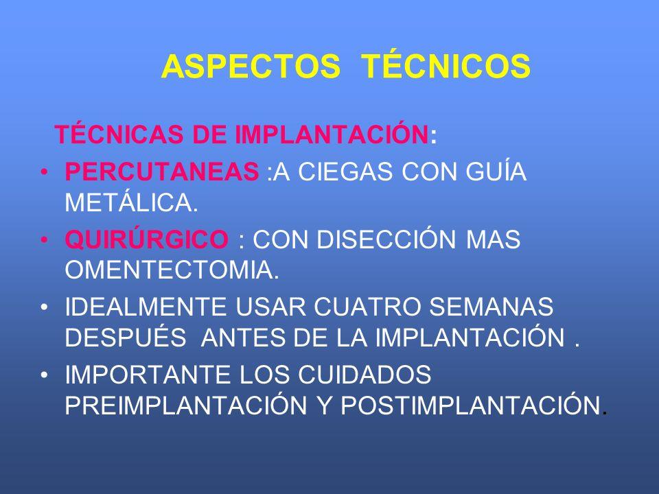 ASPECTOS TÉCNICOS TÉCNICAS DE IMPLANTACIÓN: