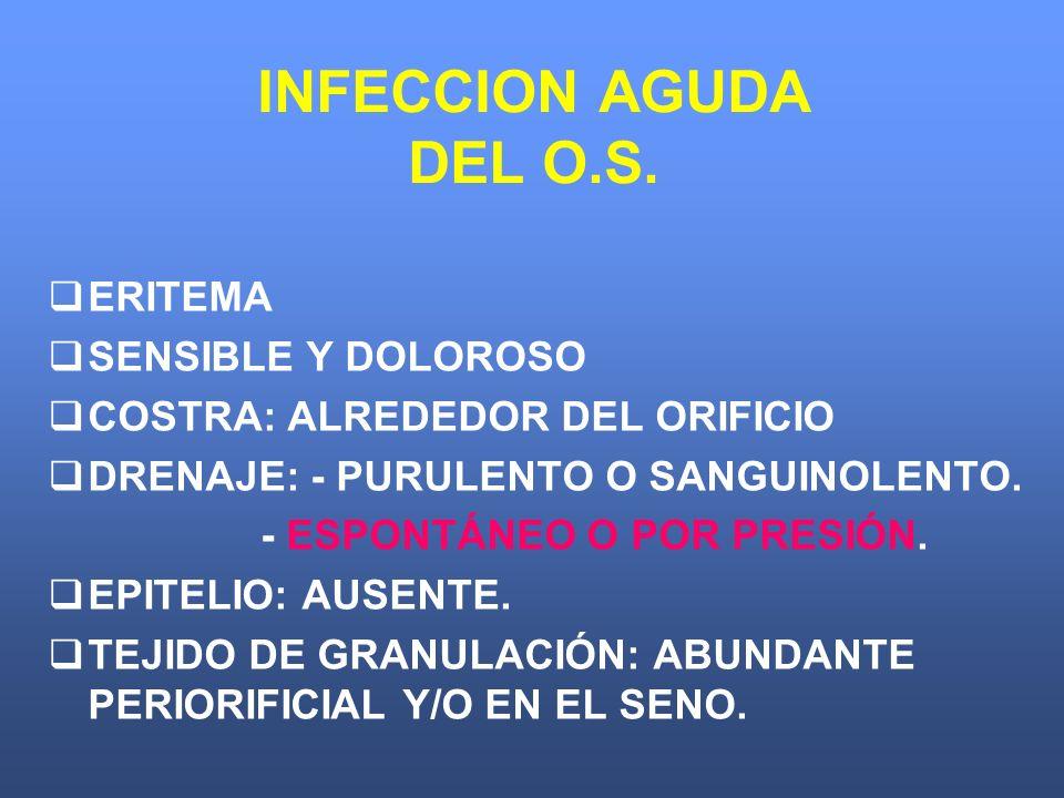 INFECCION AGUDA DEL O.S. ERITEMA SENSIBLE Y DOLOROSO