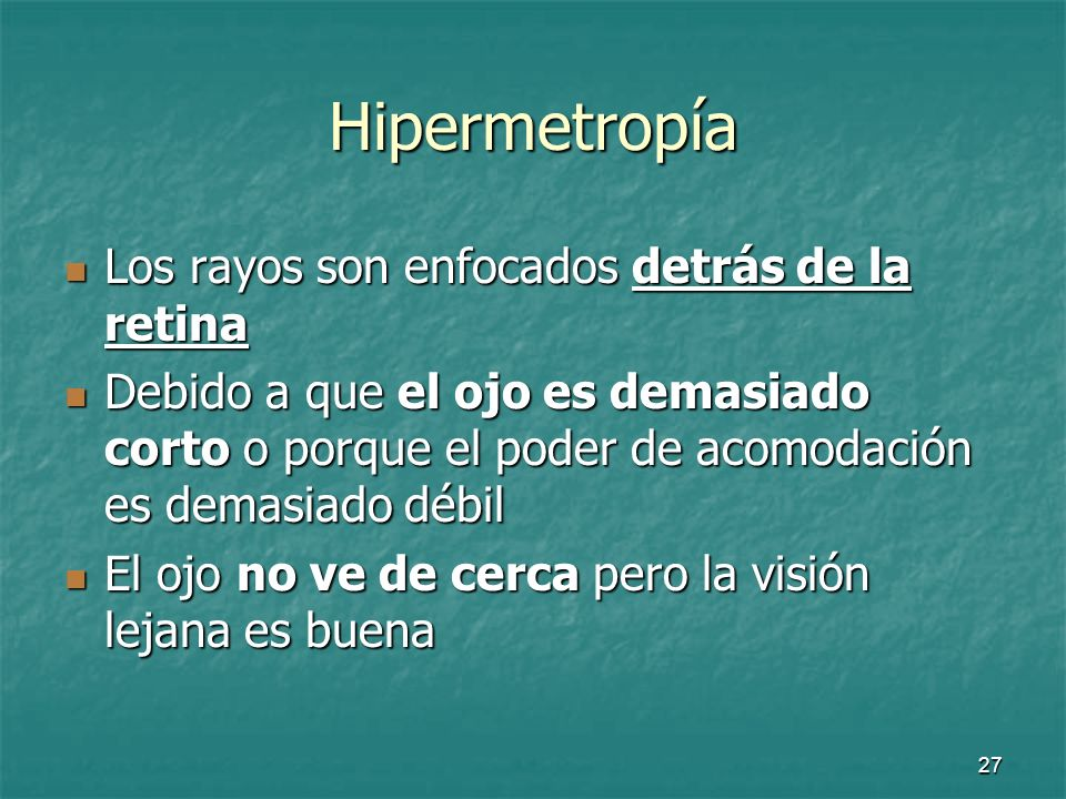 Hipermetropía Los rayos son enfocados detrás de la retina