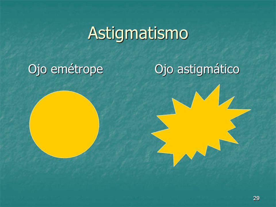 Astigmatismo Ojo emétrope Ojo astigmático