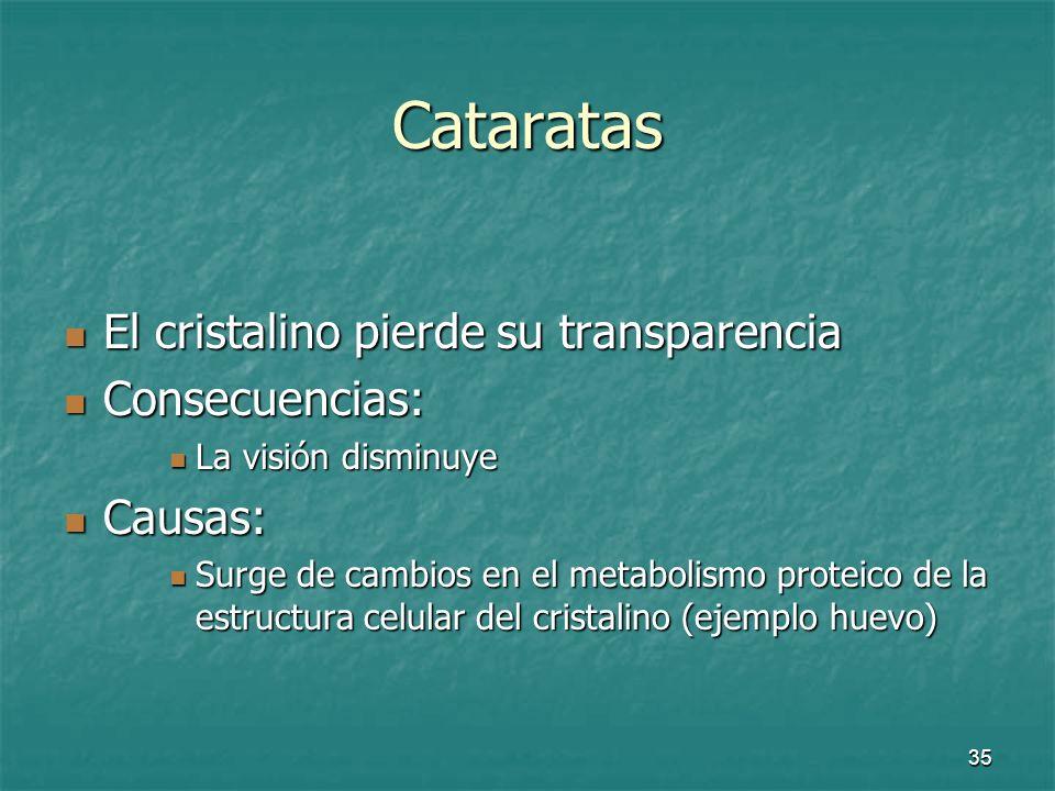 Cataratas El cristalino pierde su transparencia Consecuencias: Causas: