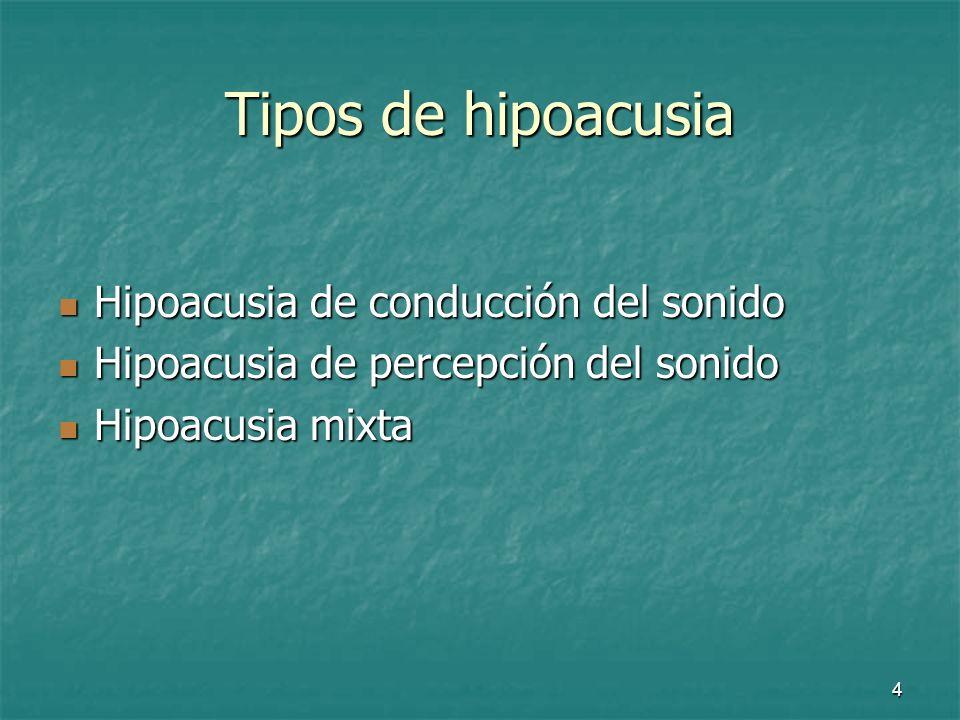 Tipos de hipoacusia Hipoacusia de conducción del sonido
