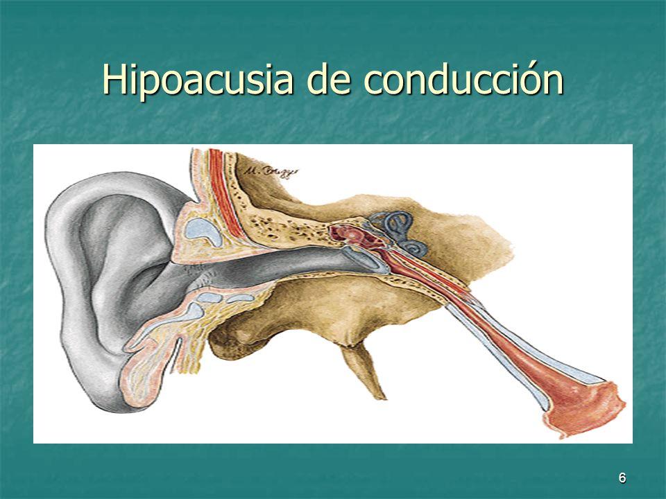 Hipoacusia de conducción