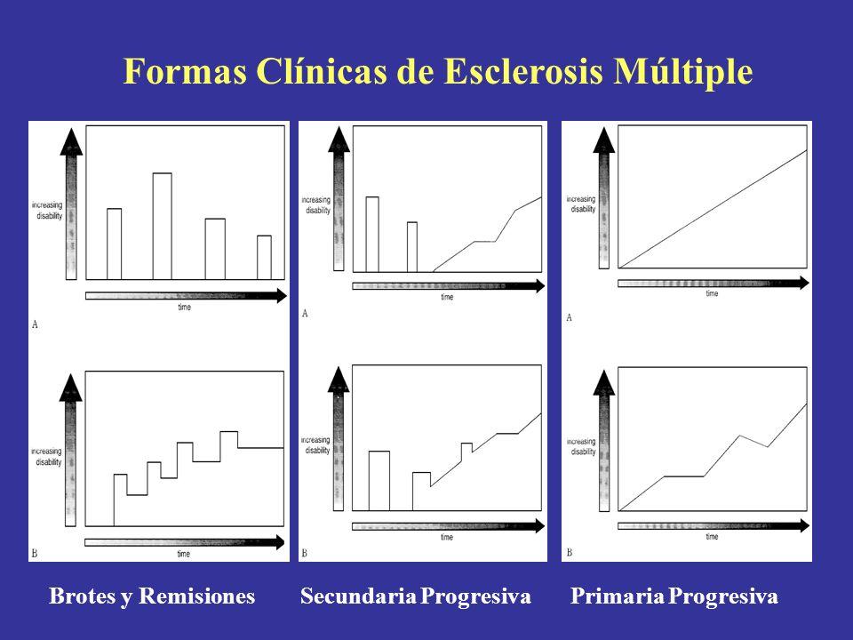 Formas Clínicas de Esclerosis Múltiple