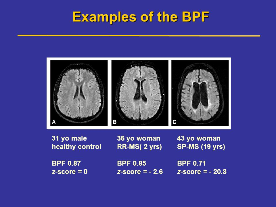 Examples of the BPF 31 yo male healthy control BPF 0.87 z-score = 0