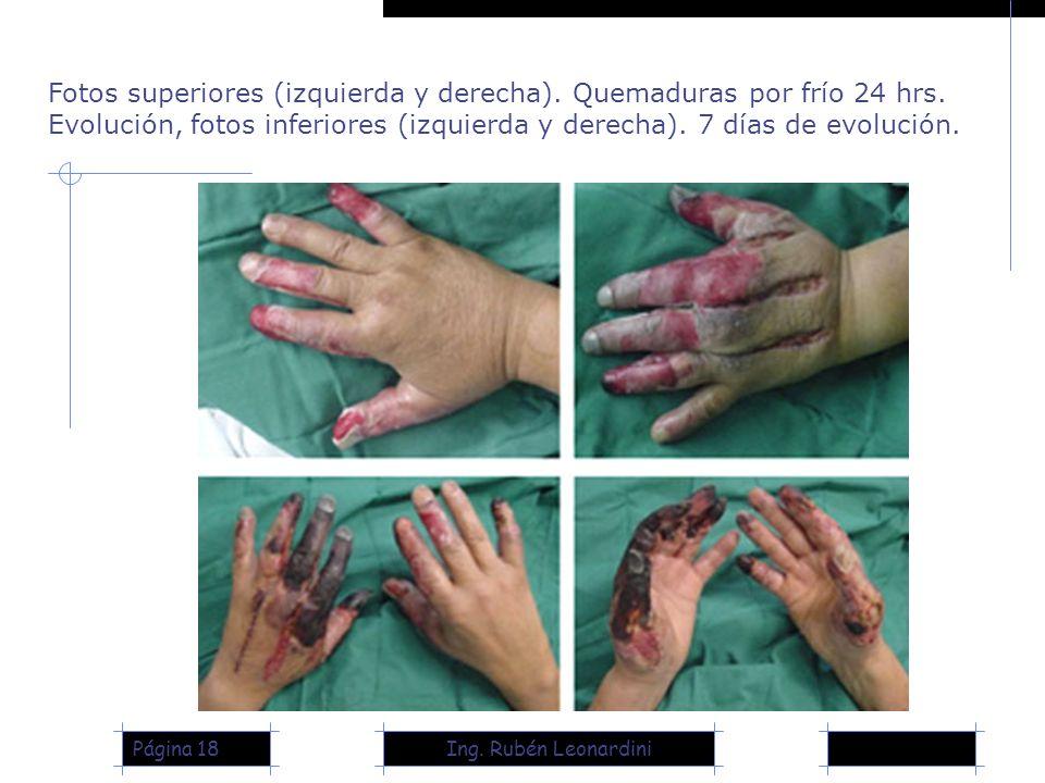 Fotos superiores (izquierda y derecha). Quemaduras por frío 24 hrs