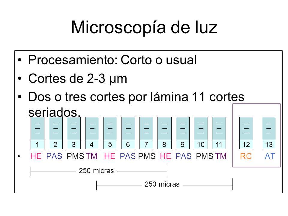 Microscopía de luz Procesamiento: Corto o usual Cortes de 2-3 µm