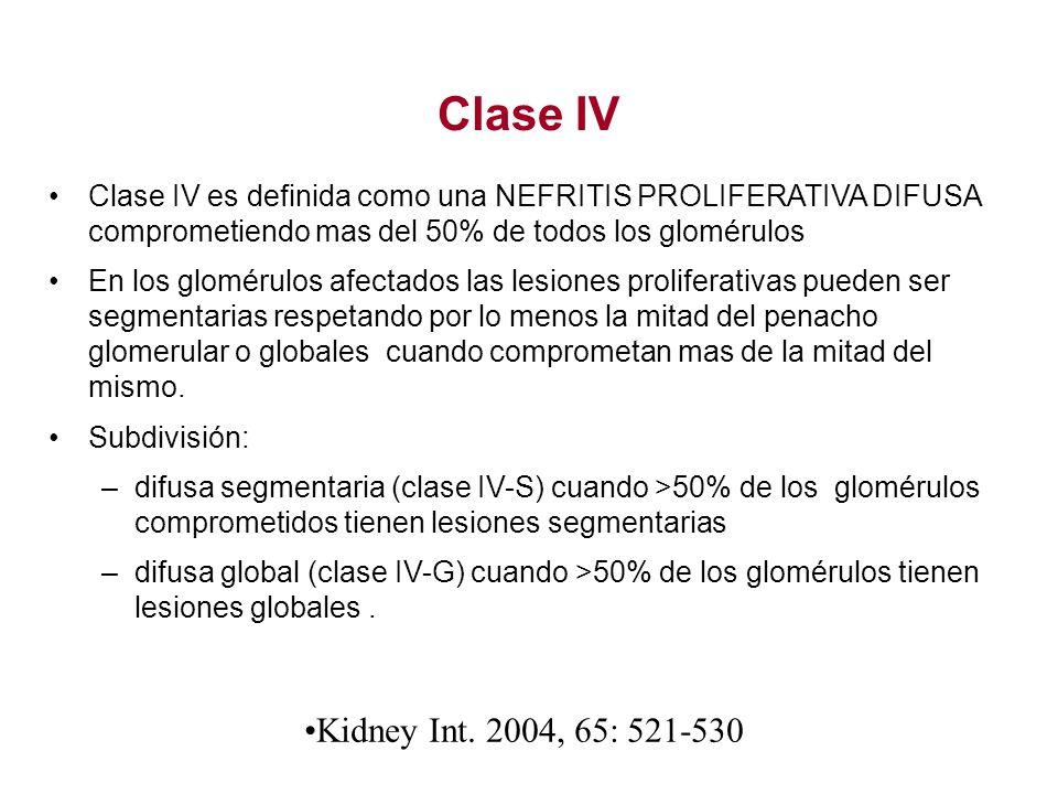 Clase IV Clase IV es definida como una NEFRITIS PROLIFERATIVA DIFUSA comprometiendo mas del 50% de todos los glomérulos.