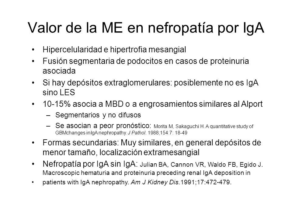 Valor de la ME en nefropatía por IgA
