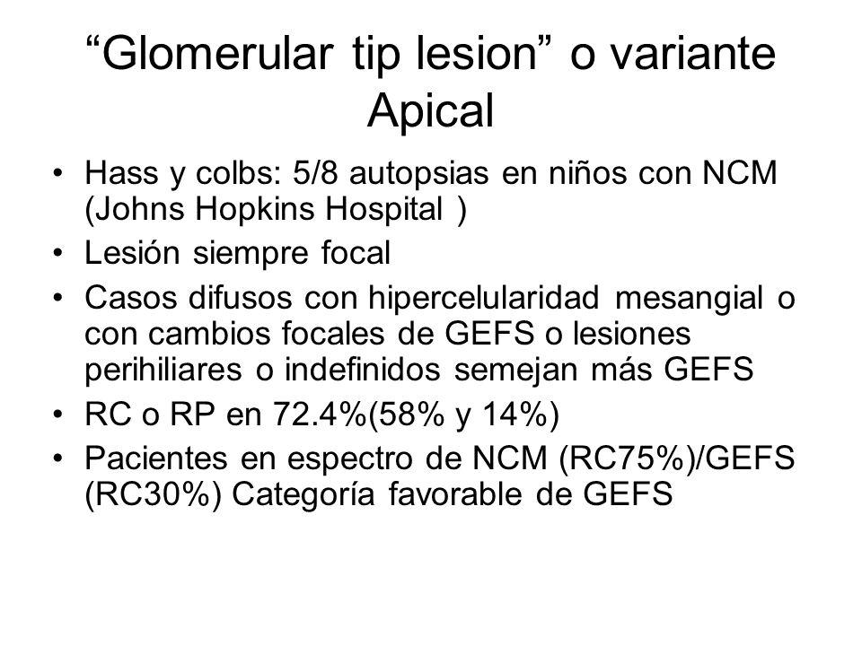 Glomerular tip lesion o variante Apical