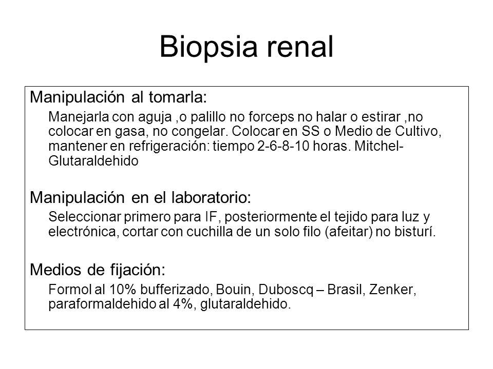 Biopsia renal Manipulación al tomarla: Manipulación en el laboratorio: