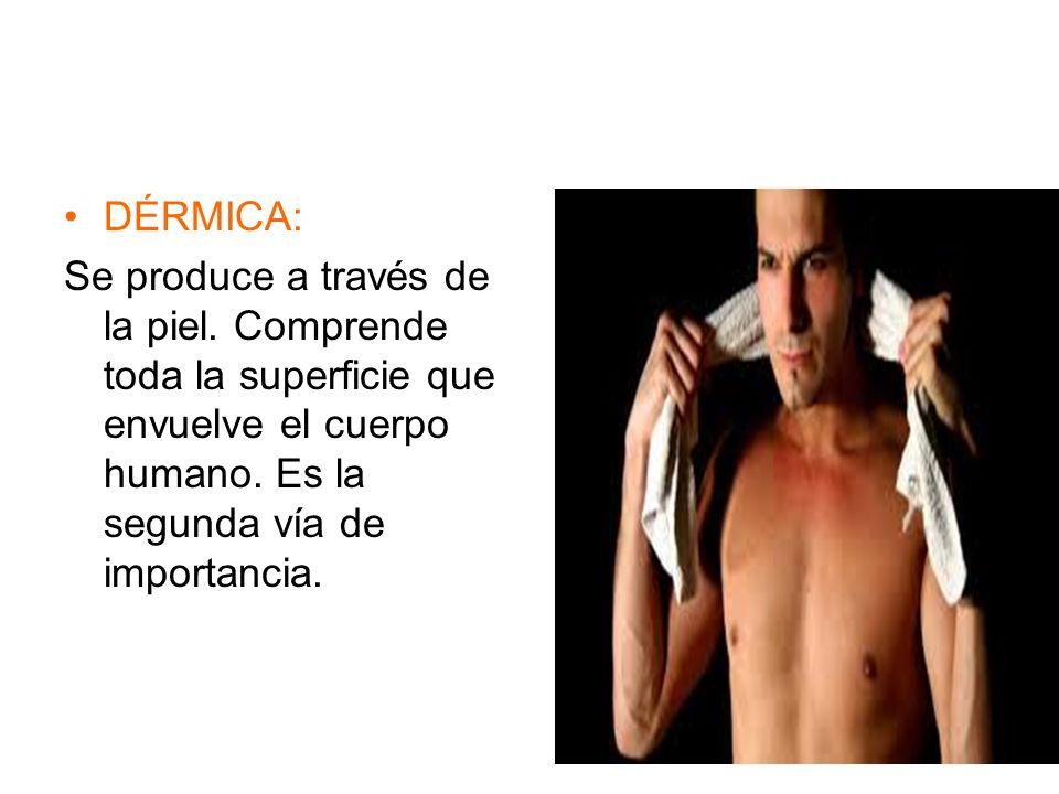 DÉRMICA: Se produce a través de la piel.