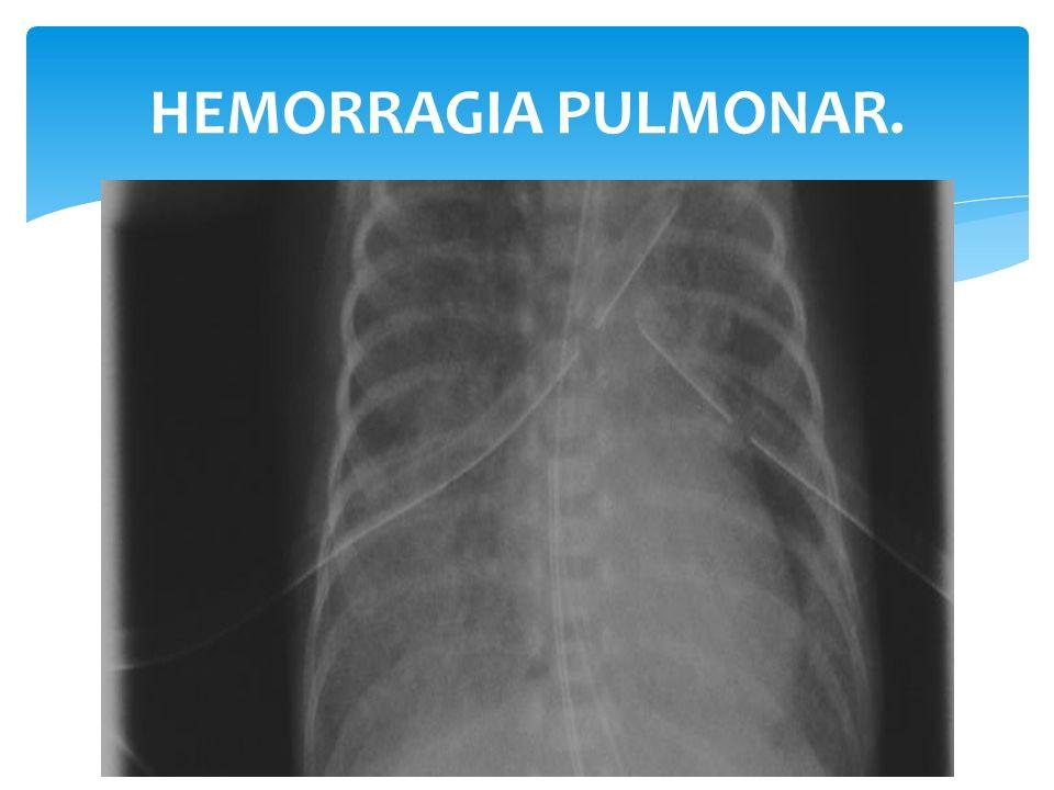 HEMORRAGIA PULMONAR.