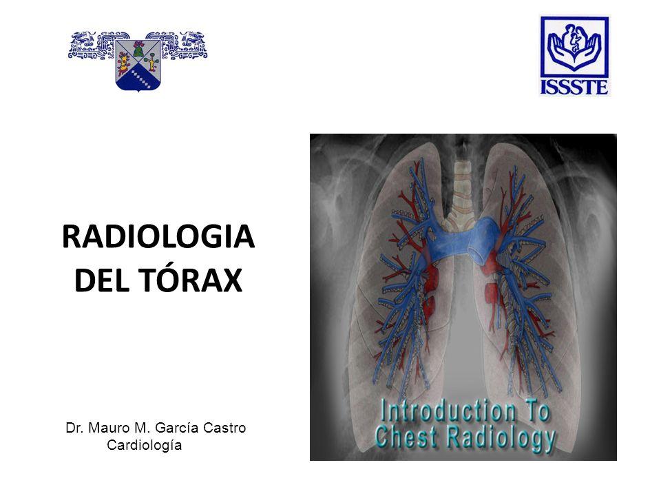 RADIOLOGIA DEL TÓRAX Dr. Mauro M. García Castro Cardiología