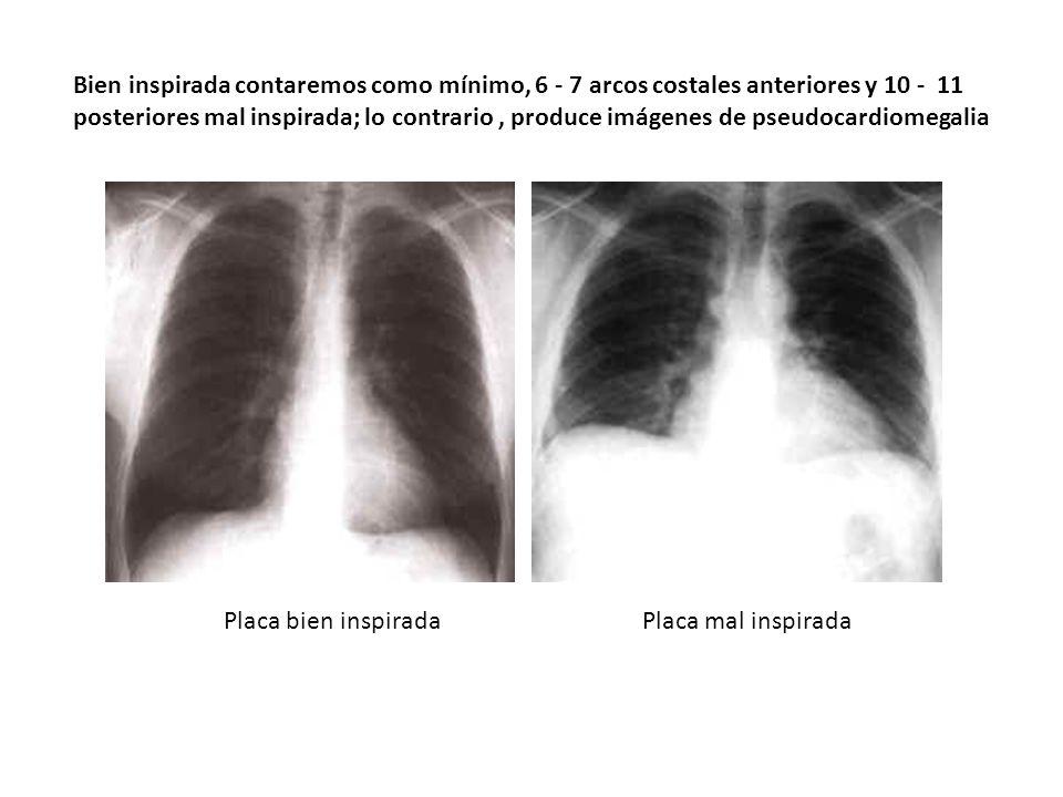 Bien inspirada contaremos como mínimo, 6 - 7 arcos costales anteriores y 10 - 11 posteriores mal inspirada; lo contrario , produce imágenes de pseudocardiomegalia