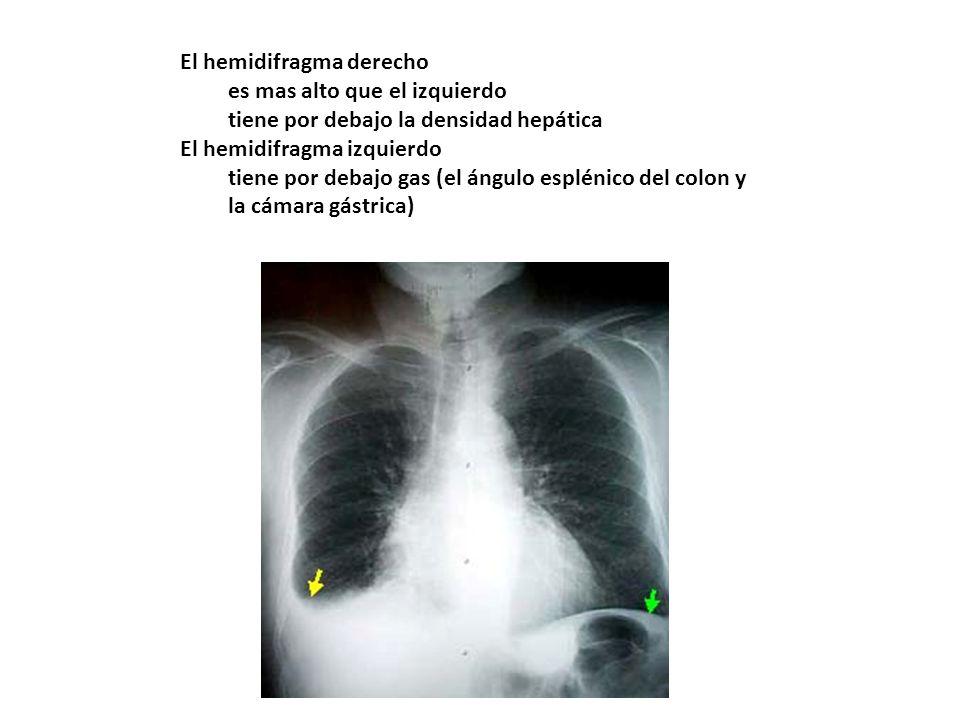 El hemidifragma derecho