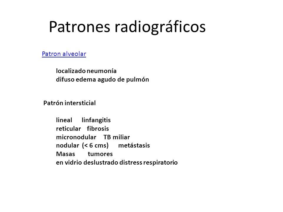 Patrones radiográficos