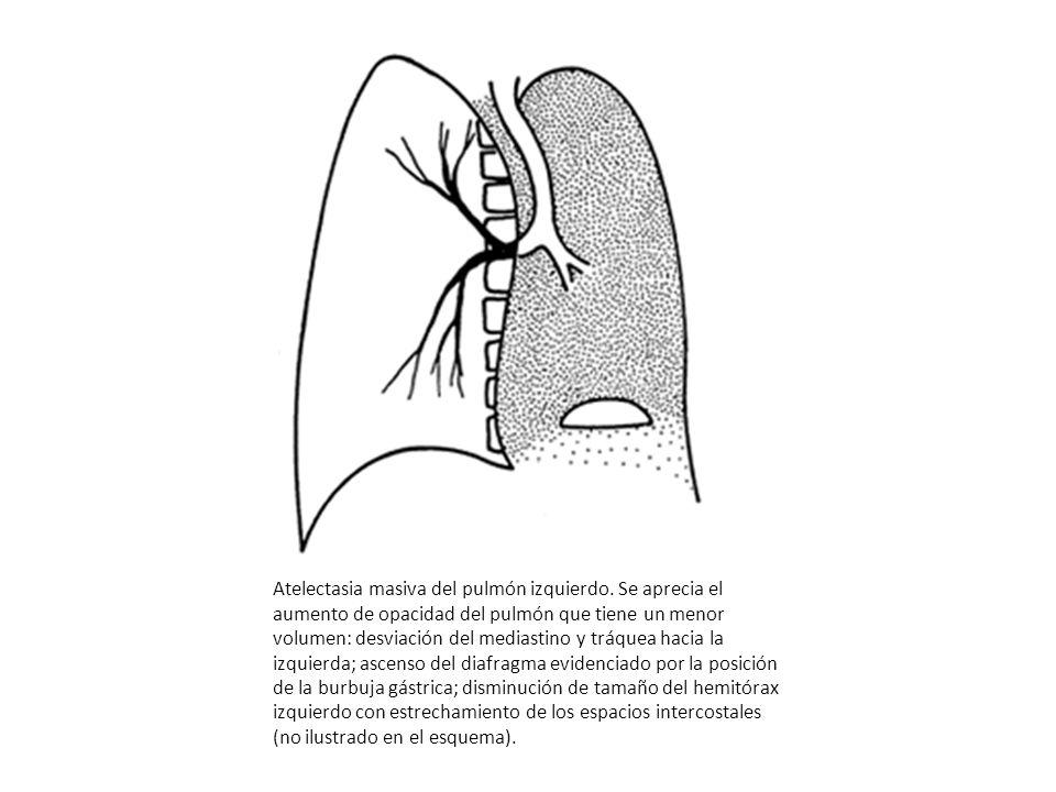 Atelectasia masiva del pulmón izquierdo