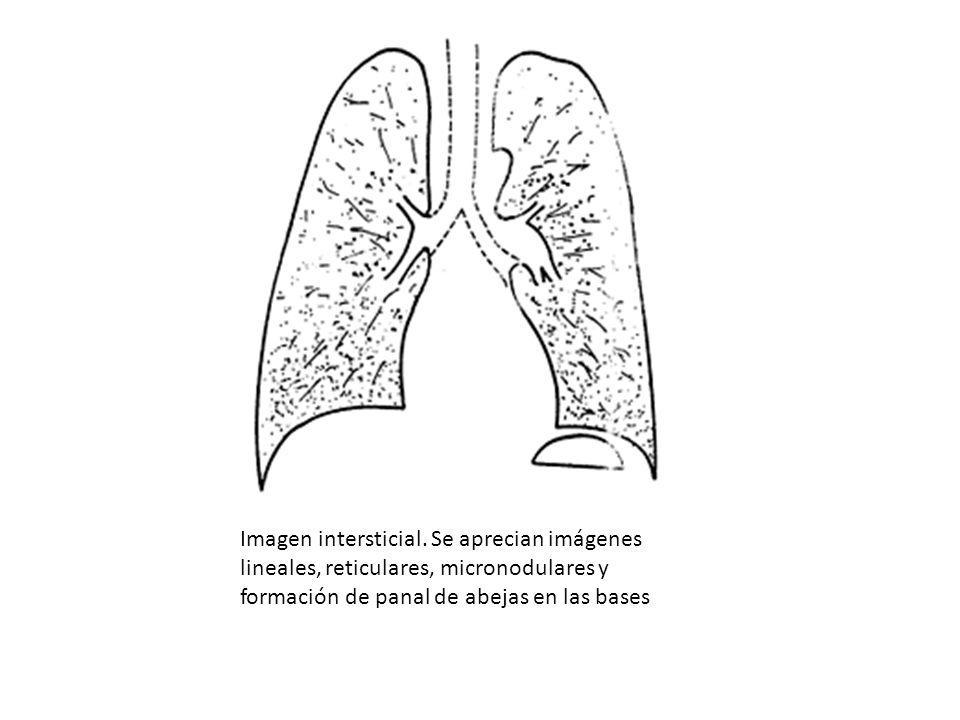 Imagen intersticial.