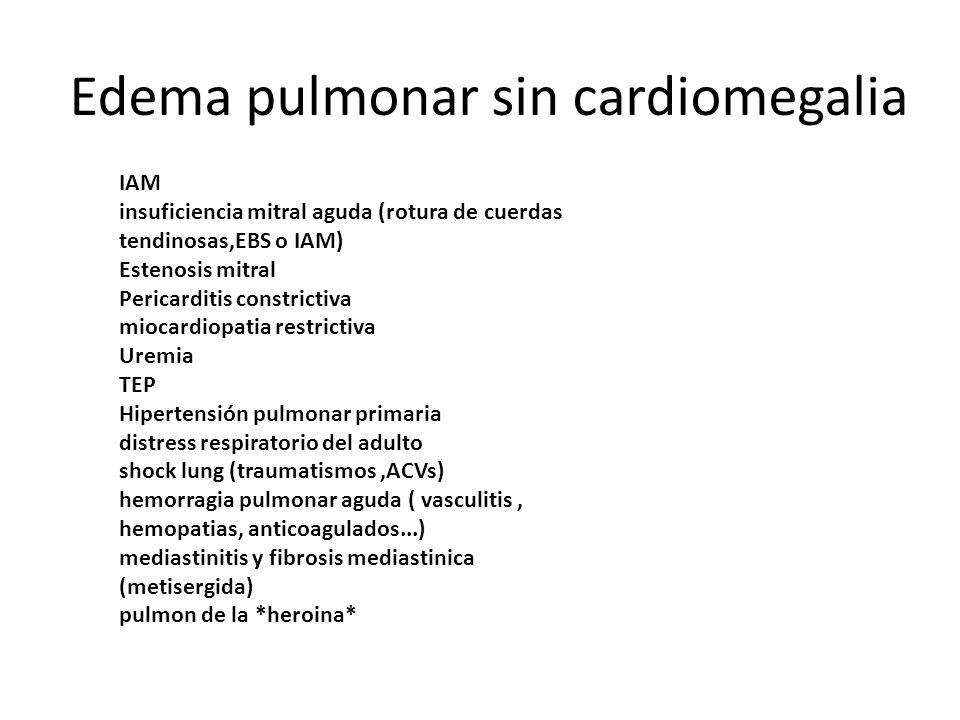 Edema pulmonar sin cardiomegalia