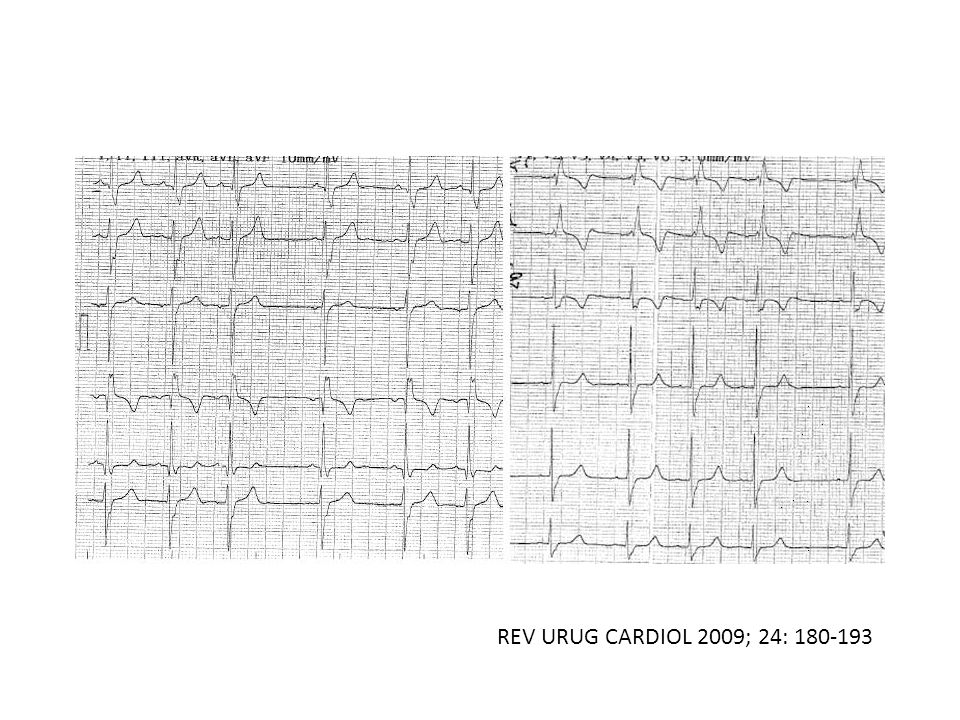 REV URUG CARDIOL 2009; 24: 180-193
