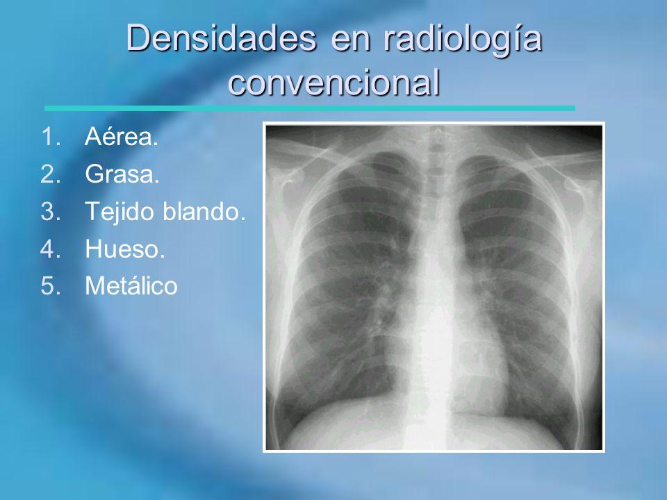 Densidades en radiología convencional