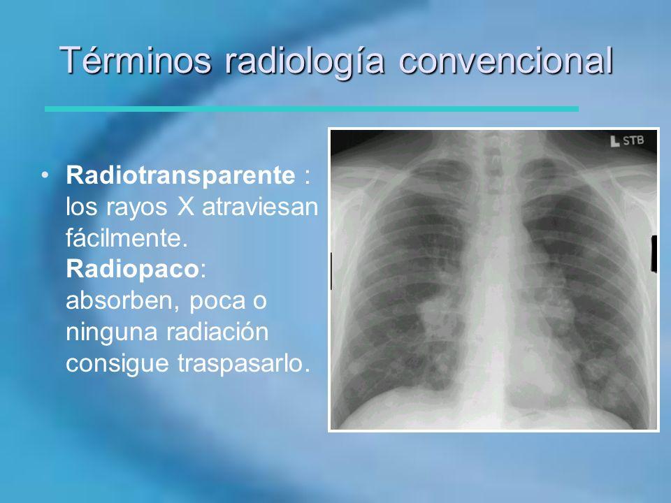 Términos radiología convencional