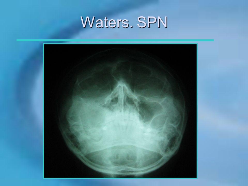 Waters. SPN