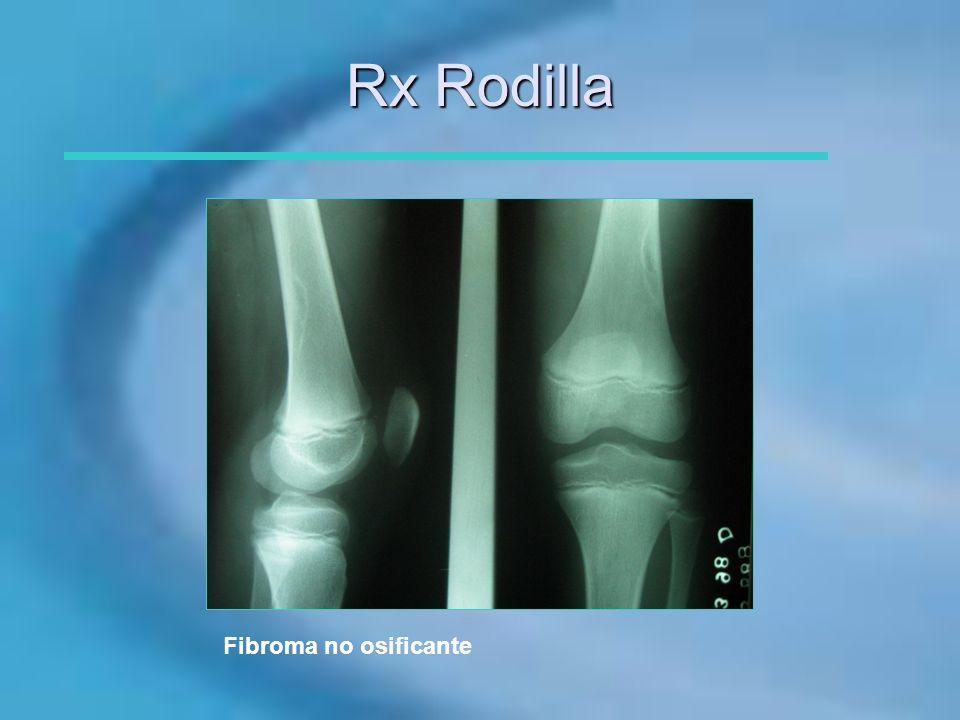 Rx Rodilla Fibroma no osificante