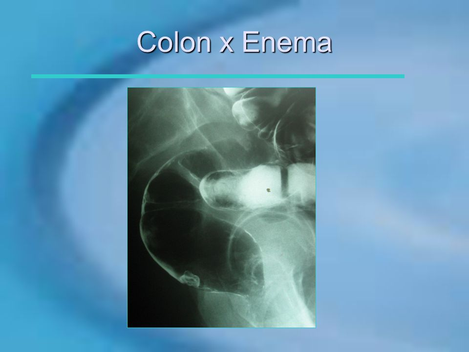Colon x Enema