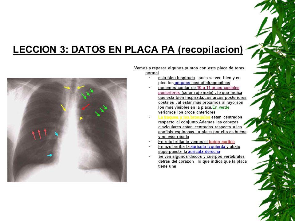 LECCION 3: DATOS EN PLACA PA (recopilacion)