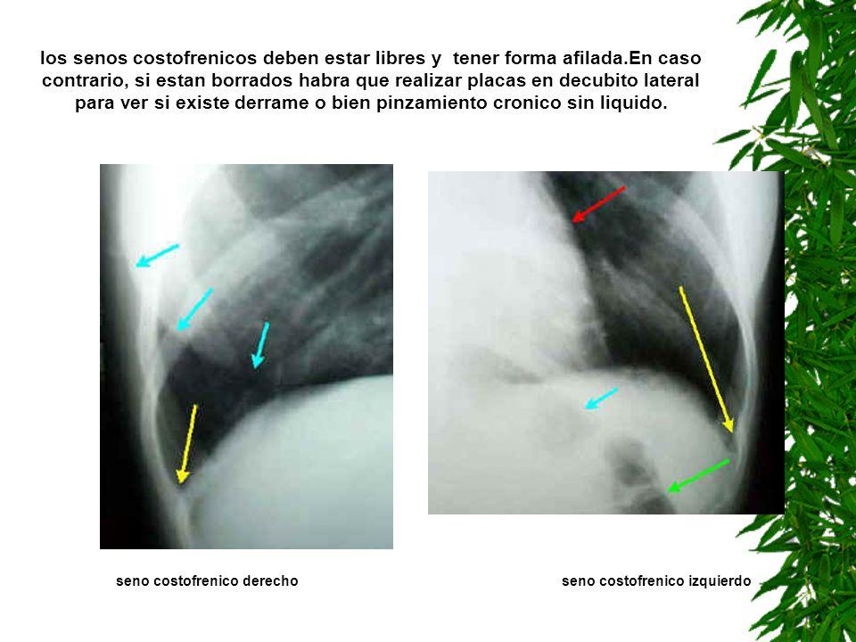 seno costofrenico derecho seno costofrenico izquierdo