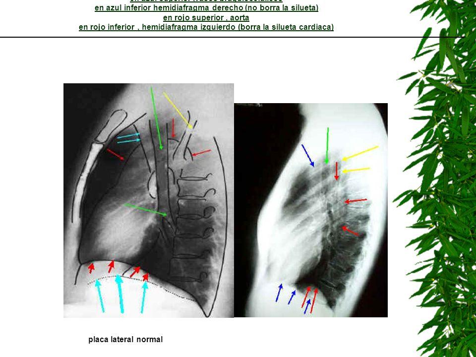 LECCION 5: lateral de torax en amarillo escapula en verde arbol bronquial en azul superior ,vasos braquiocefalicos en azul inferior hemidiafragma derecho (no borra la silueta) en rojo superior , aorta en rojo inferior , hemidiafragma izquierdo (borra la silueta cardiaca)