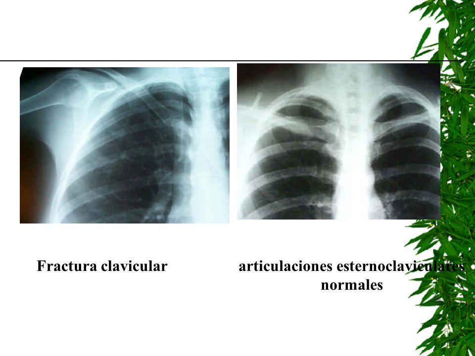 articulaciones esternoclaviculares normales