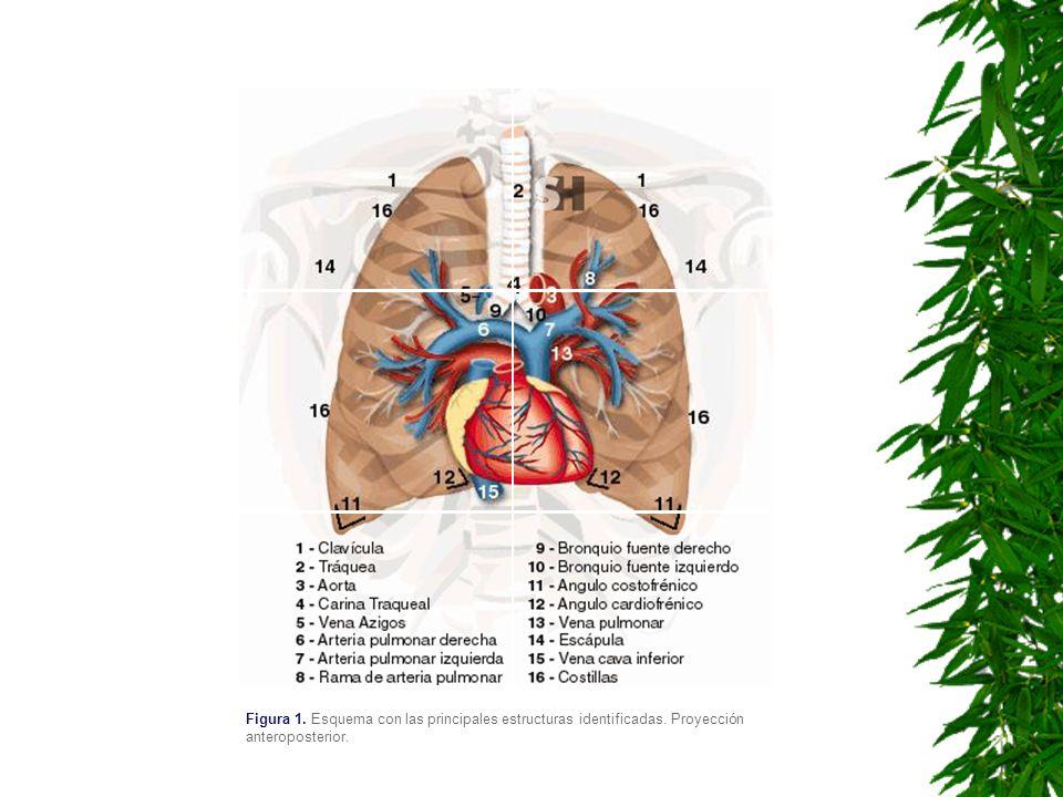 Figura 1. Esquema con las principales estructuras identificadas