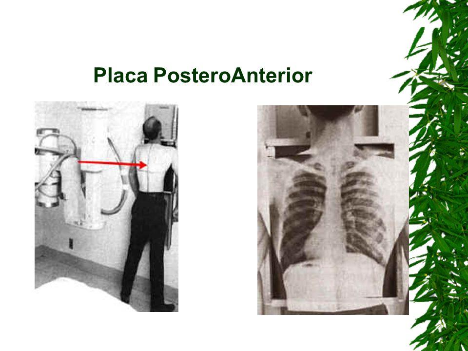 Placa PosteroAnterior