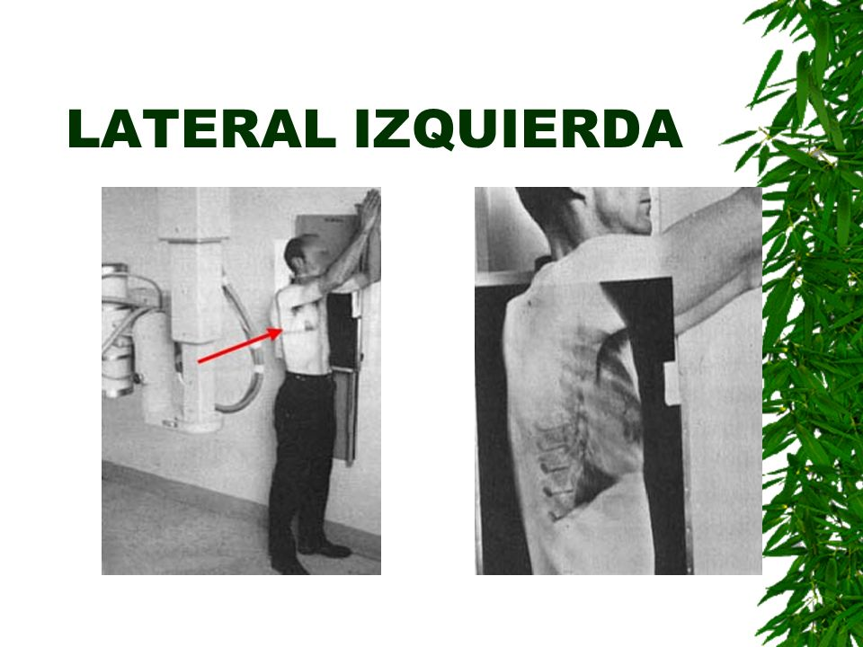 LATERAL IZQUIERDA Placa lateral