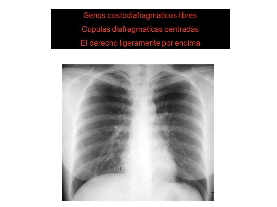 3. Diafragma SISTEMA DE LECTURA Senos costodiafragmaticos libres