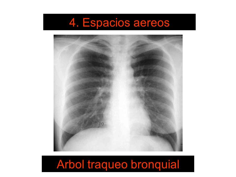 Arbol traqueo bronquial
