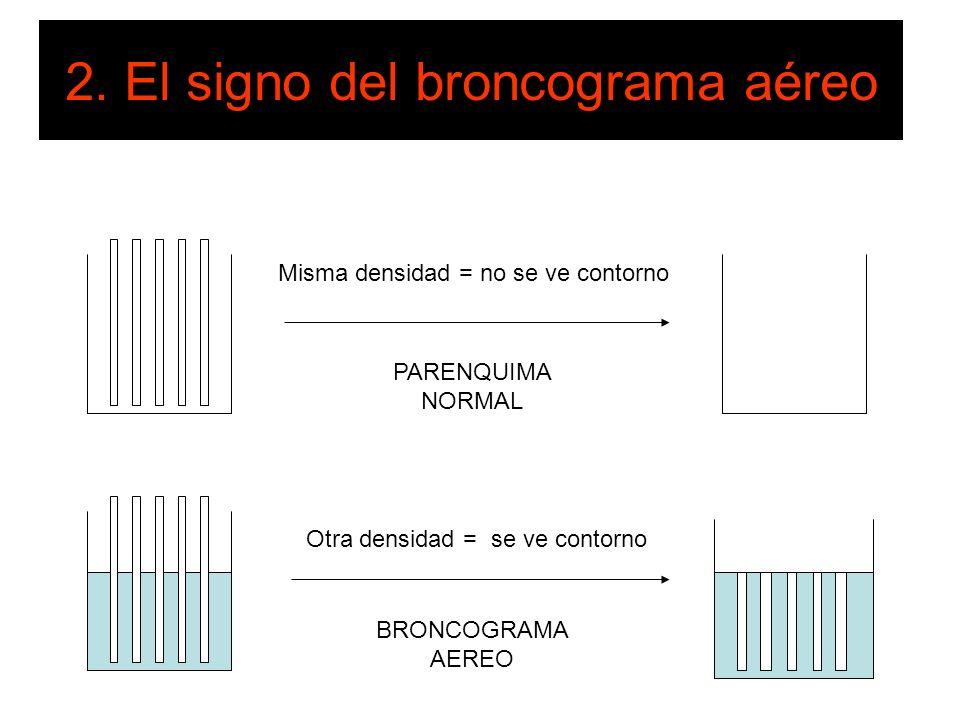 2. El signo del broncograma aéreo