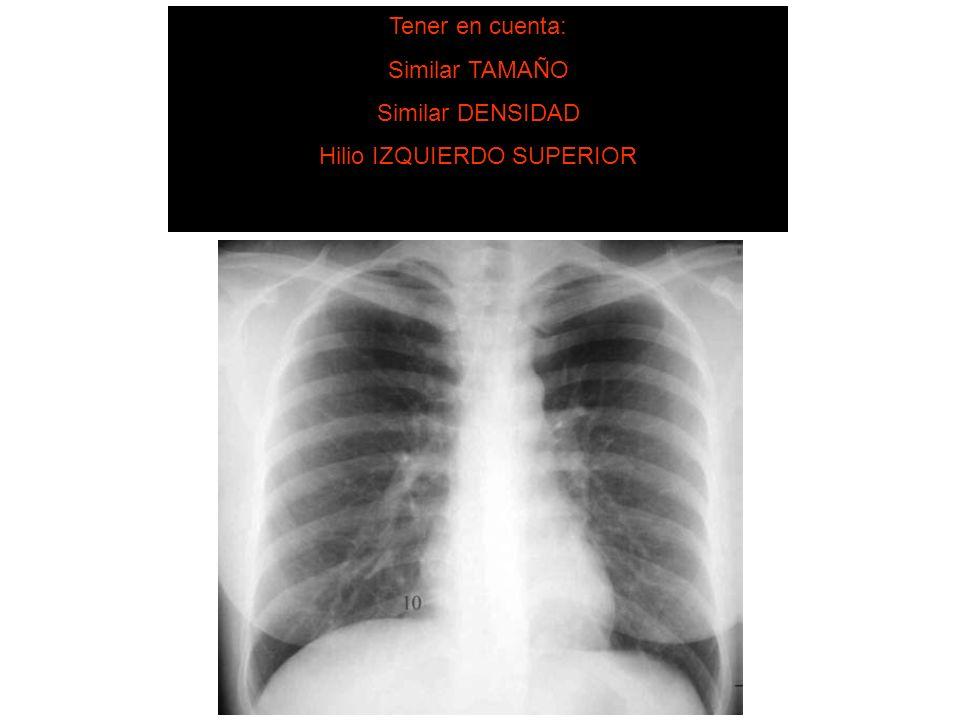 Hilio IZQUIERDO SUPERIOR