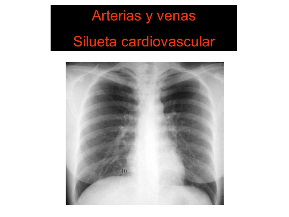 Silueta cardiovascular 6. Estructuras vasculares
