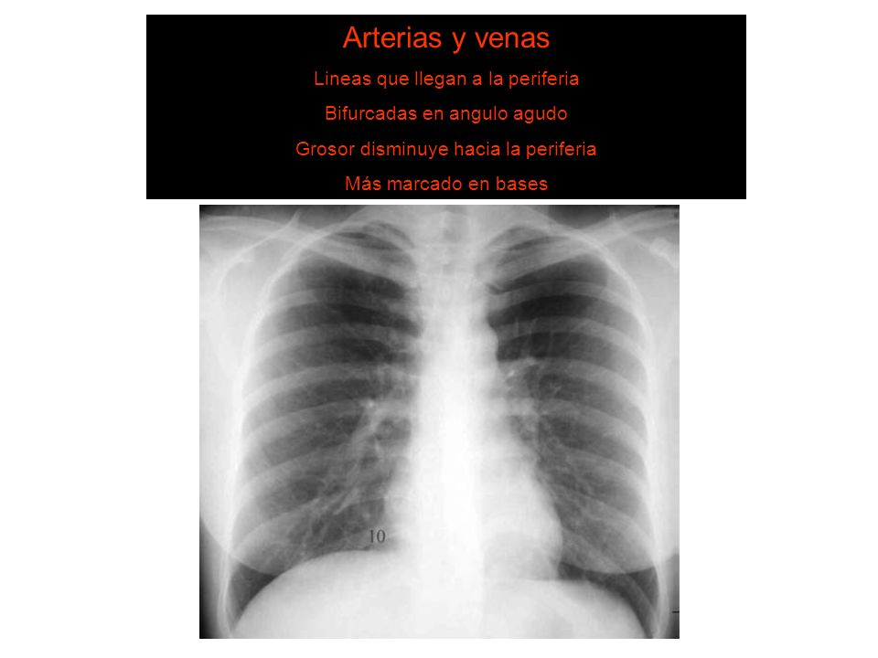6. Estructuras vasculares