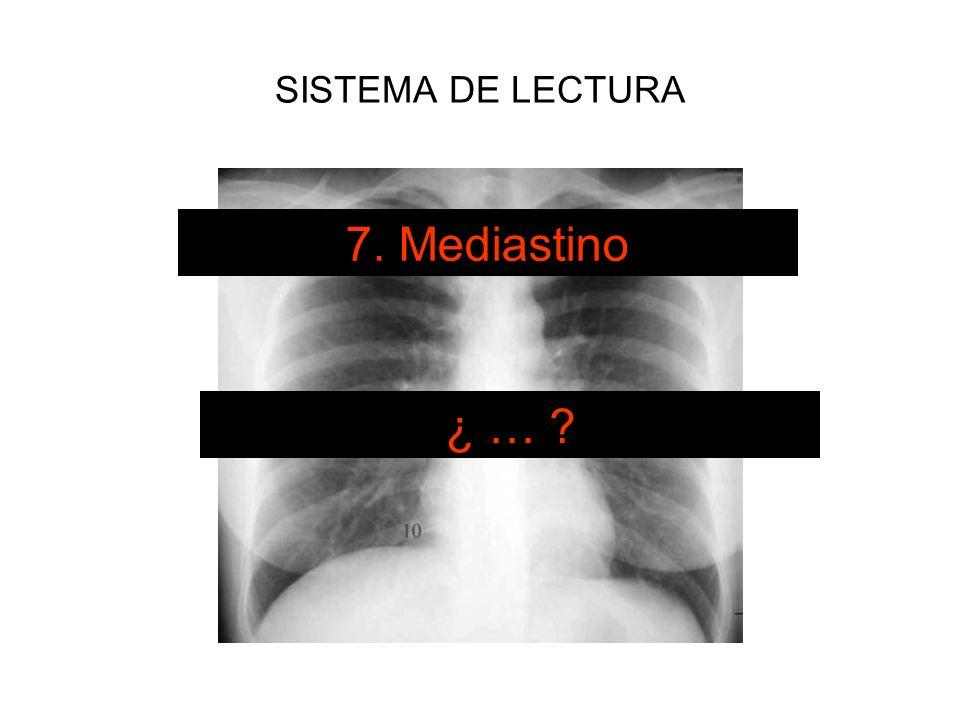 SISTEMA DE LECTURA 7. Mediastino ¿ …