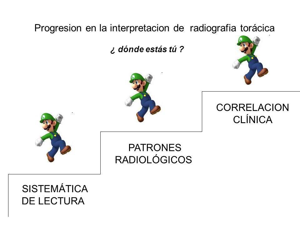 Progresion en la interpretacion de radiografia torácica