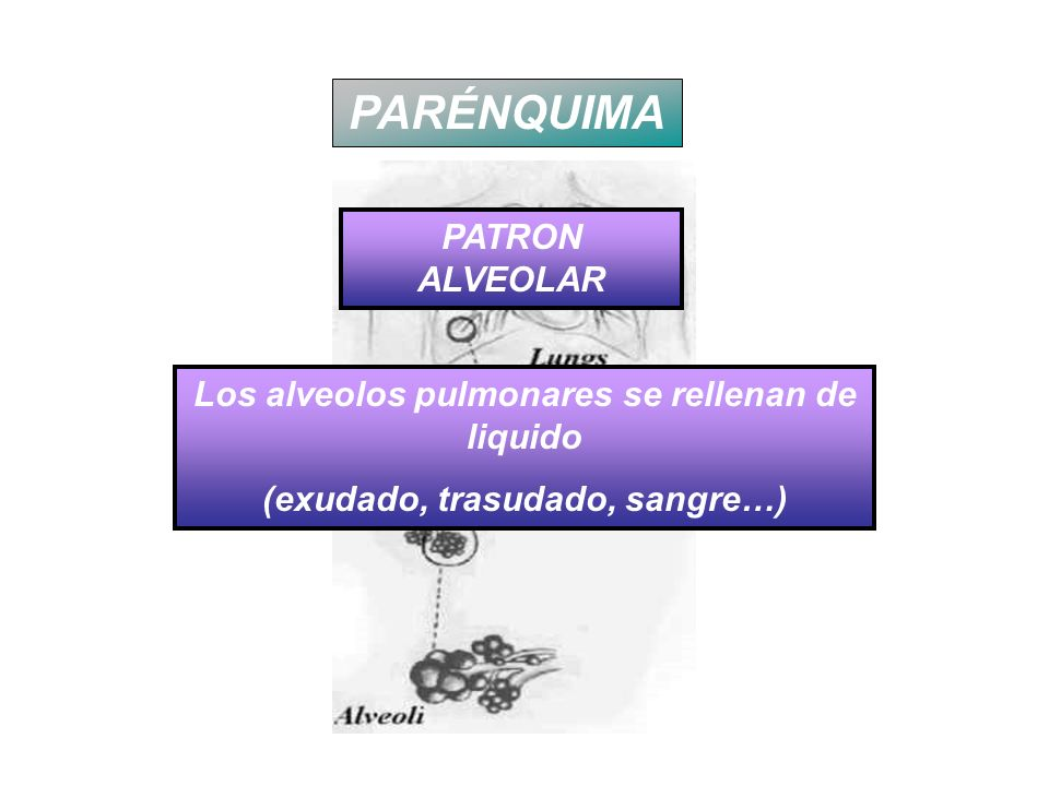 PARÉNQUIMA PATRON ALVEOLAR