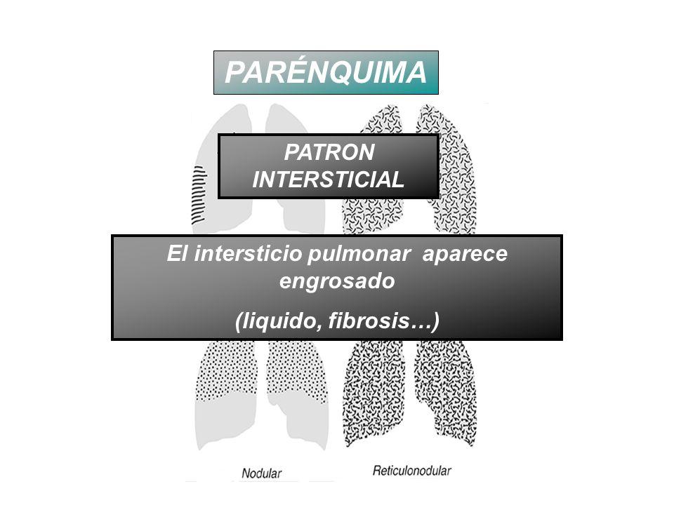 El intersticio pulmonar aparece engrosado