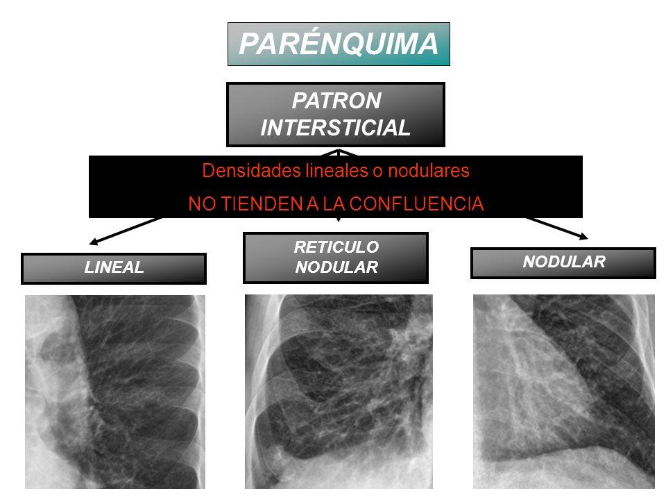 PARÉNQUIMA PATRON INTERSTICIAL Densidades lineales o nodulares