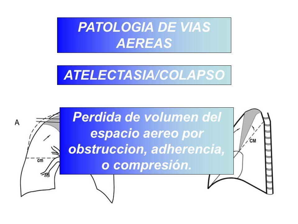 PATOLOGIA DE VIAS AEREAS